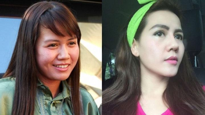 Nita Thalia sebelum dan sesudah operasi plastik